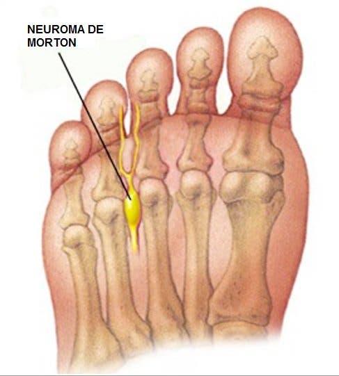 Automasaje de los dedos y zona anterior del pie para metatarsalgia