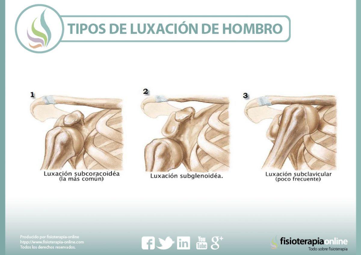luxación anterior de hombro
