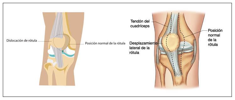 cirugía de la luxación de rótula