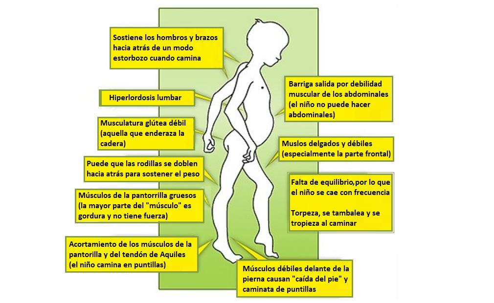 Dificultad para caminar (marcha en la distrofia de Duchenne)