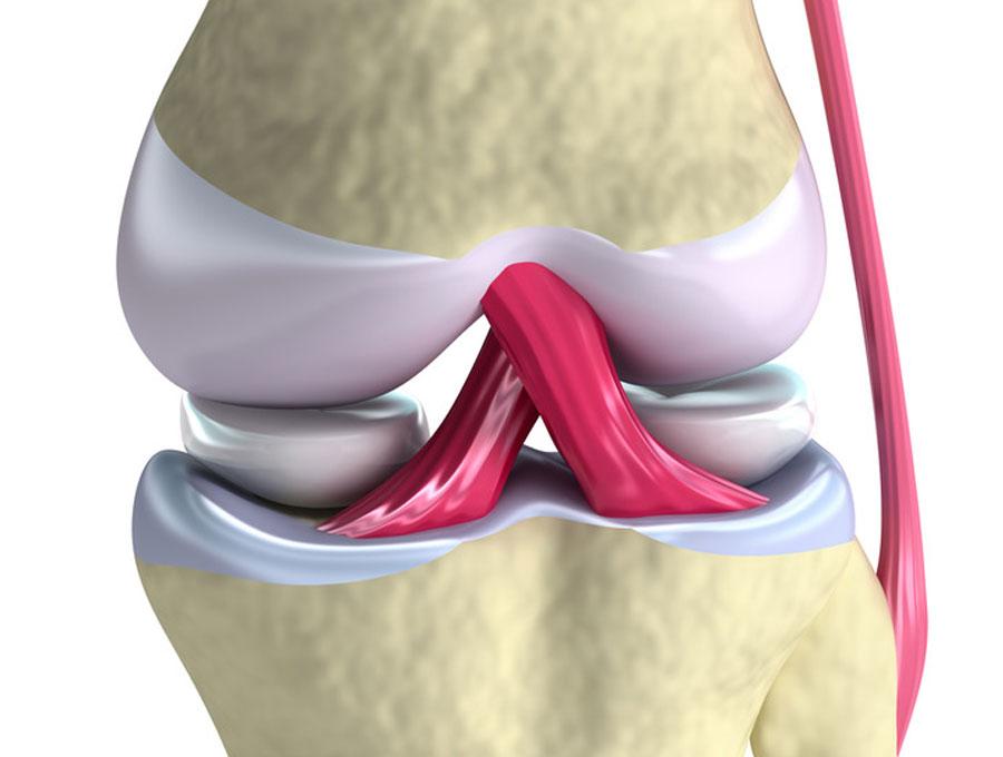 cirugía de trasplante de menisco
