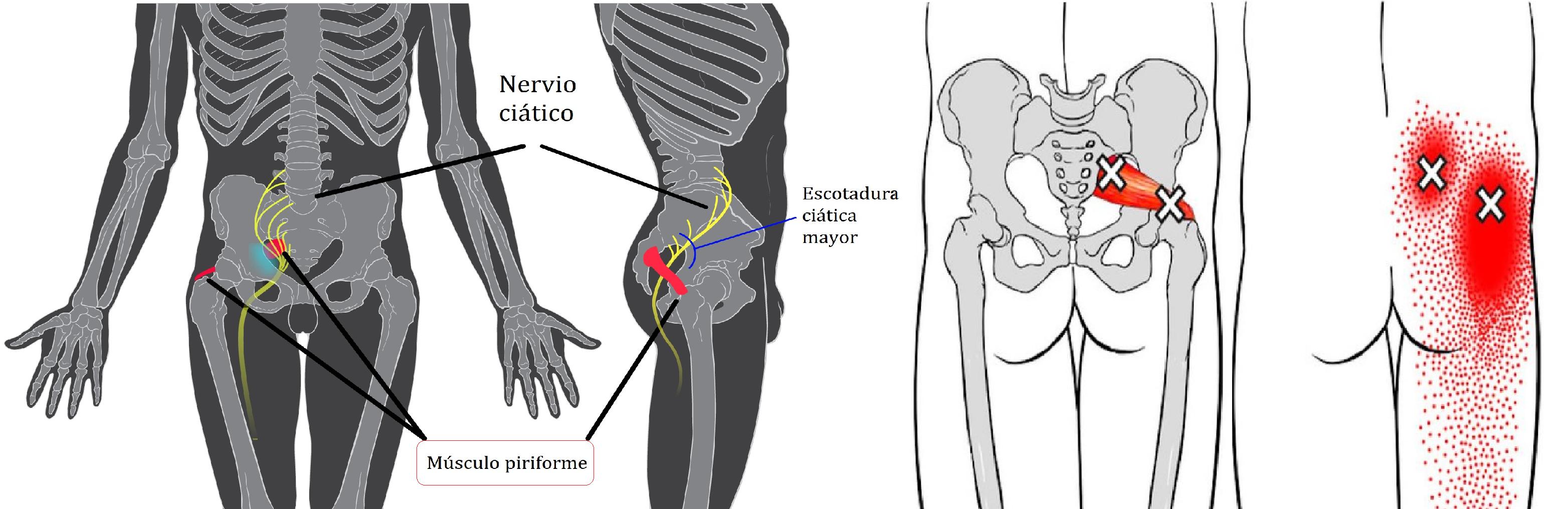 músculo piramidal o piriforme
