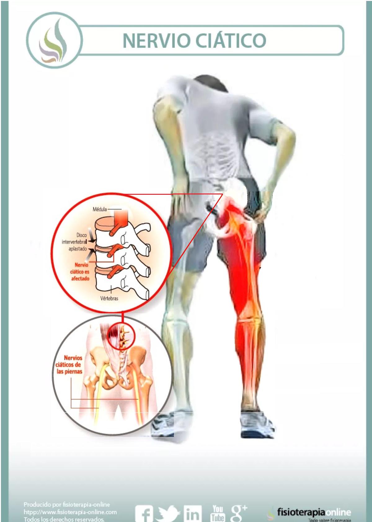 protrusión o hernia discal lumbar