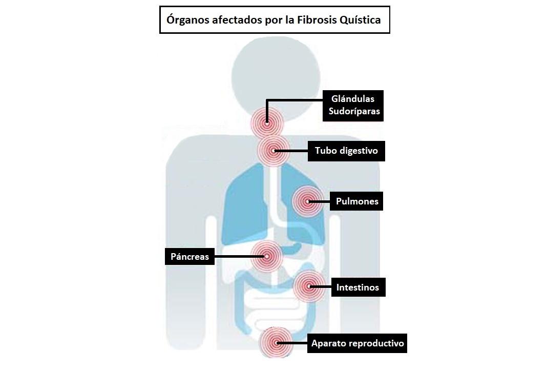órganos afectados por la fibrosis quístca