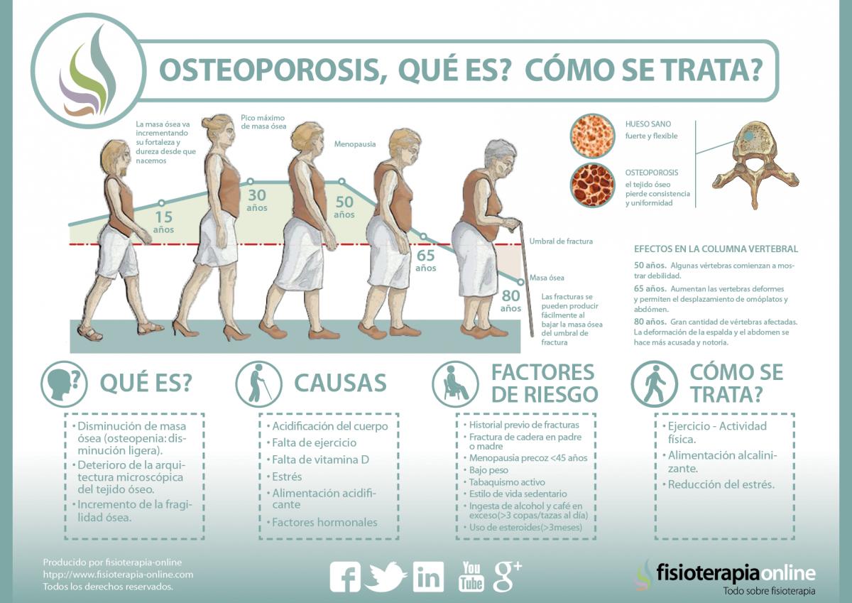 osteoporosis_osteopenia_perdida_de_masa_osea