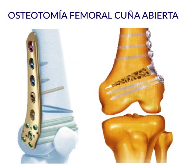 osteotomía femoral