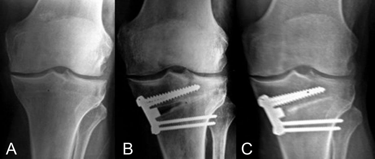 osteotomía tibial