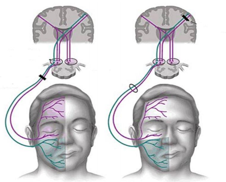 tipos de parálisis facial periférica y central