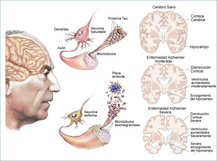 Qué parte del cerebro se ve afectado por el Alzheimer