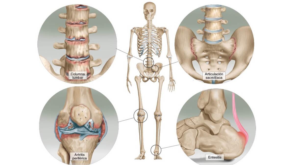 Partes afectadas por la espondilitis anquilosante