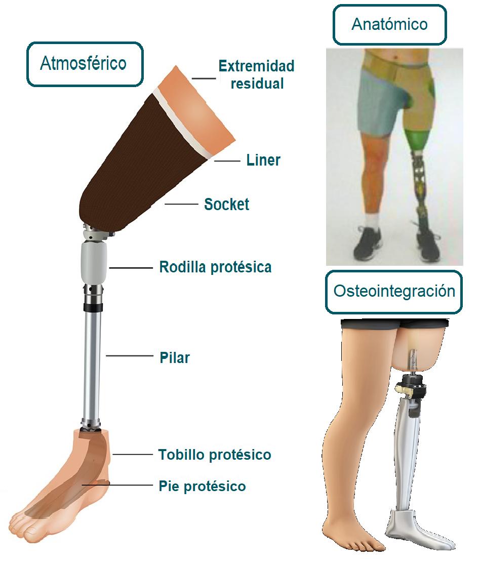 Partes de una prótesis femoral o transfemoral
