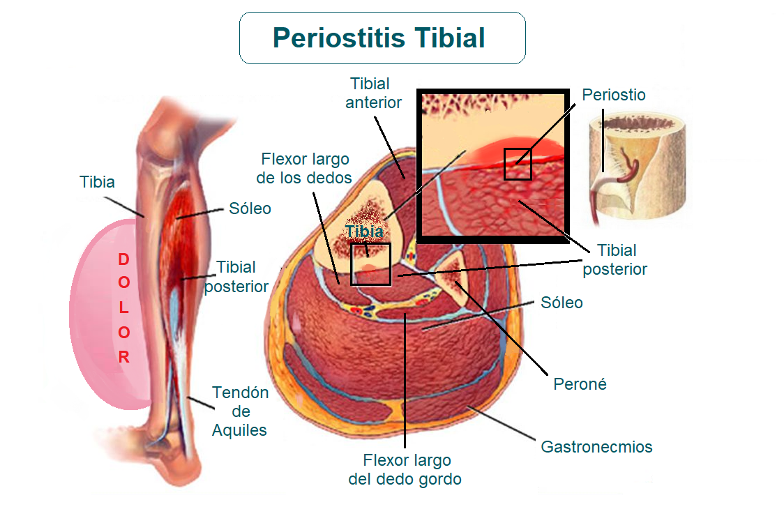 Anatomía de la periostitis tibial