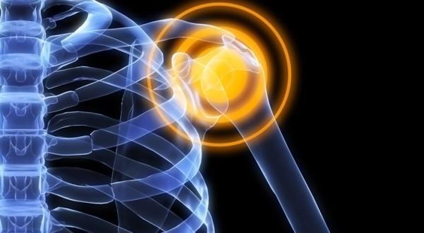 Pilates para el dolor de hombro