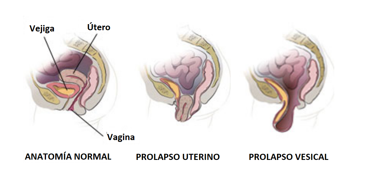 Prolapso uterino y vesical