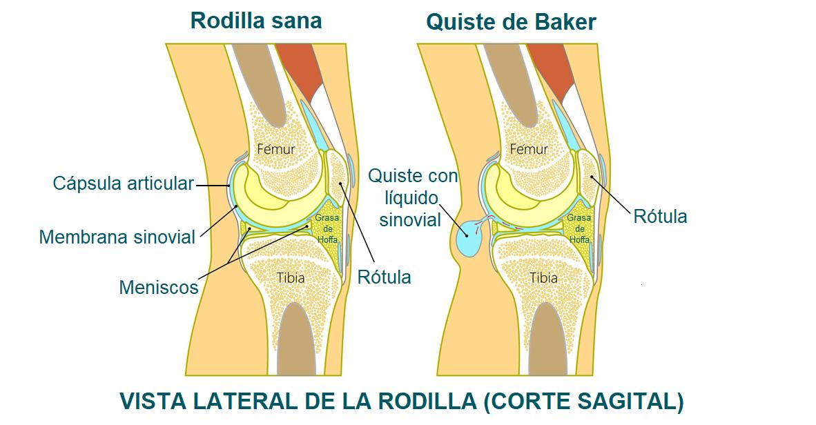 anatomía del quiste de Baker