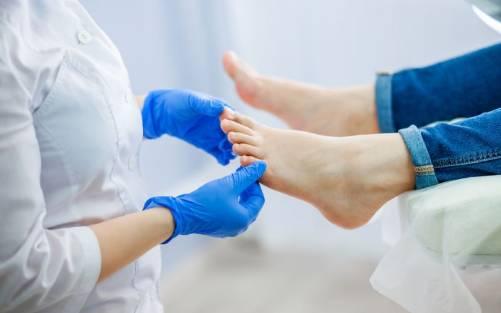 Rehabilitación post quirúrgica de dedo en martillo
