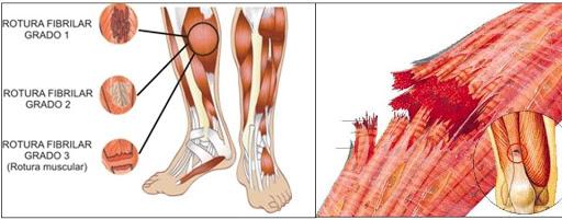 tiempo de recuperación de las roturas de fibras musculares