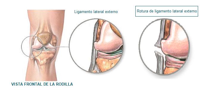 rotura de ligamento lateral externo