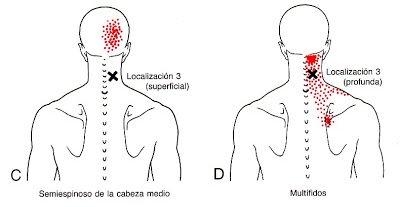 dolor en el cuello nuca y cabeza