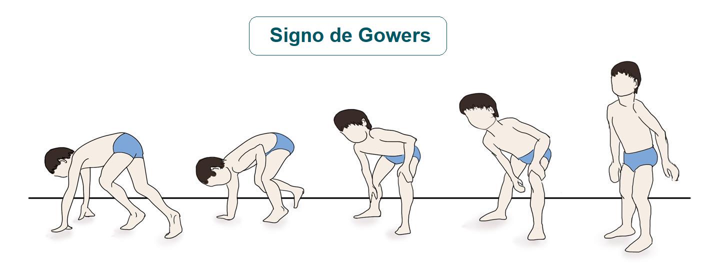 Dificultad para levantarse del suelo (signo de Gowers)