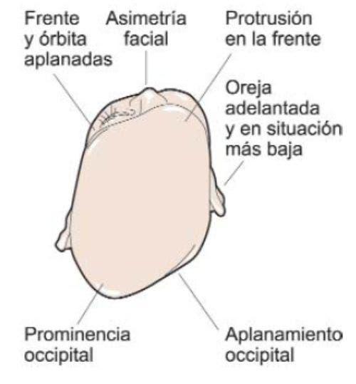 Signos de la plagiocefalia