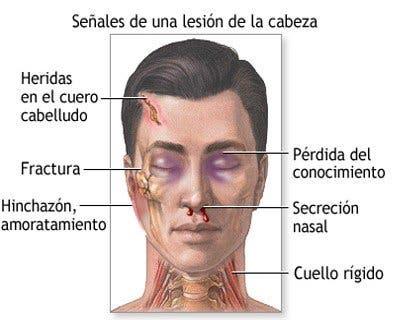 signos del traumatismo craneoencefálico