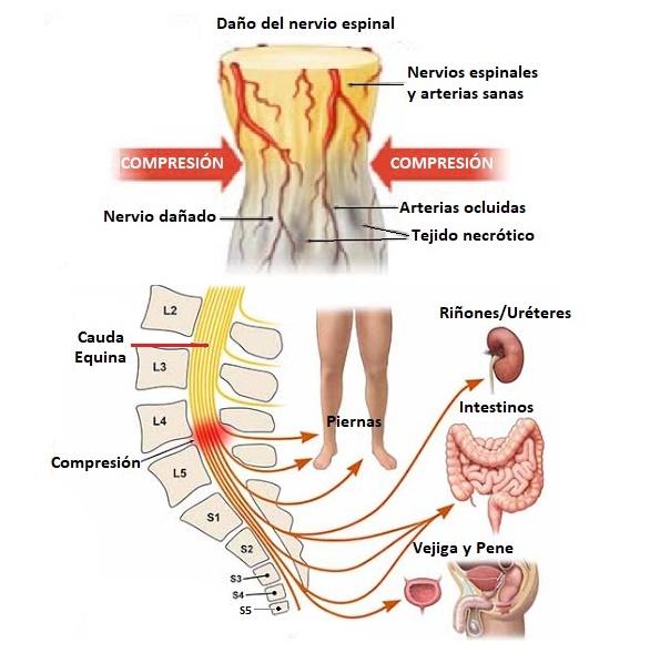 síndrome de la cola de caballo o cauda equina