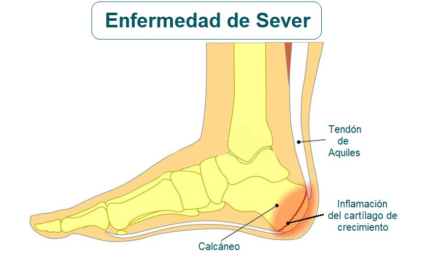 Síndrome o enfermedad de Sever