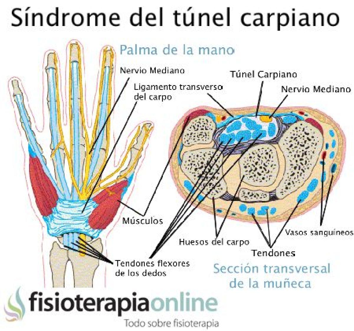 anatomía sindrome del tunel carpiano