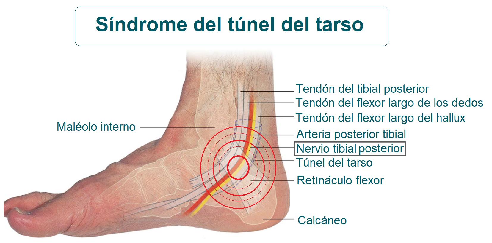 Anatomía del síndrome del túnel del tarso