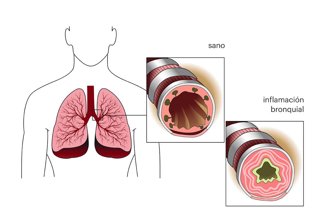 Sistema respiratorio sano y con asma