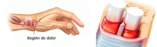 Diagnóstico de la Tendinitis De Quervain
