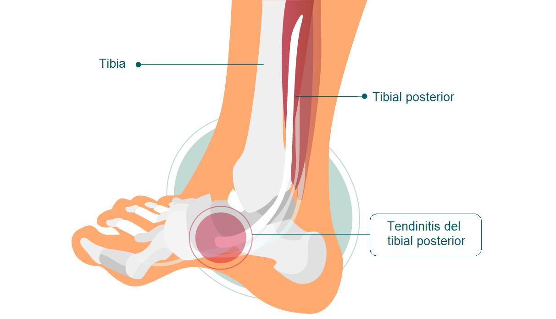 tendinitis de tibial posterior
