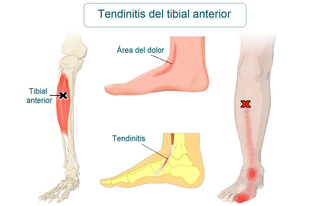 tendinitis de tibial anterior
