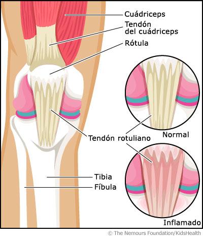 tendón rotuliano y el tendón cuadricipital