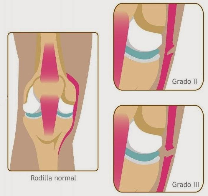 Tiempo de recuperación del esguince de rodilla