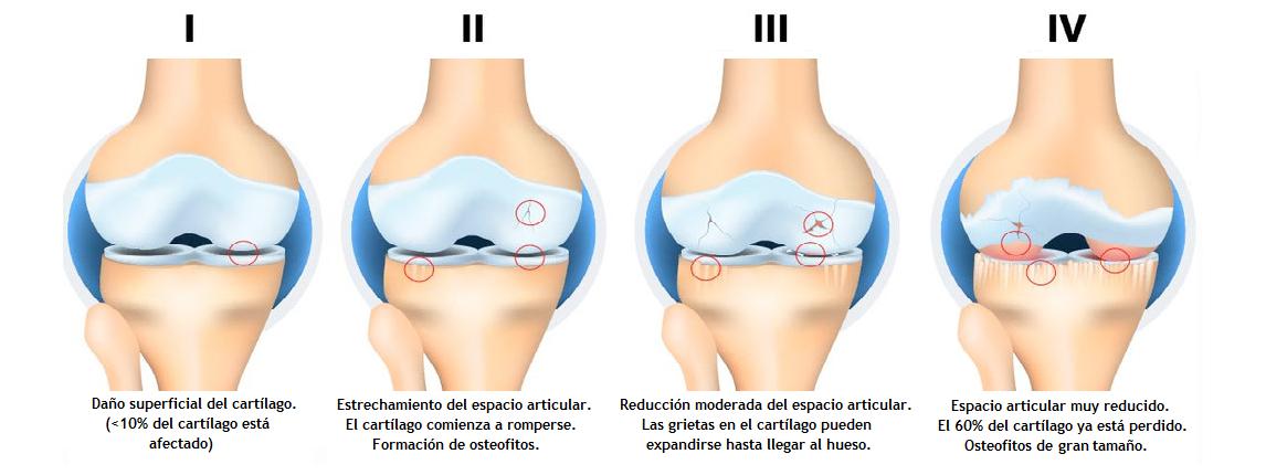 tipos de artrosis de rodilla