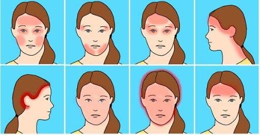 tipos de dolor de cabeza o cefalea