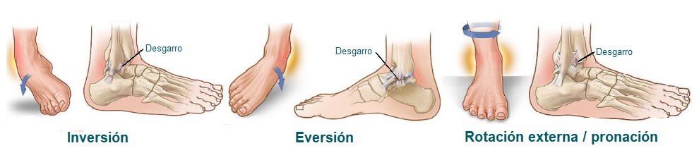 Tipos de esguinces de tobillo según mecanismo de lesión