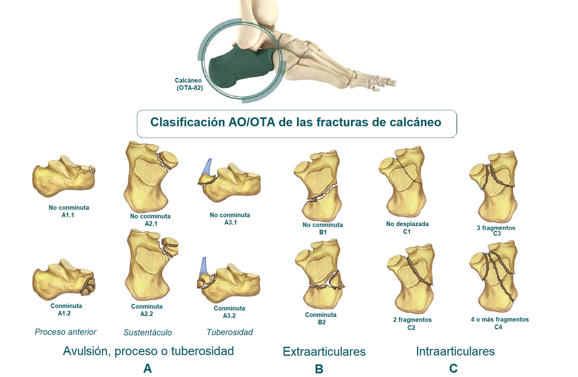 Tipos de fracturas de calcáneo