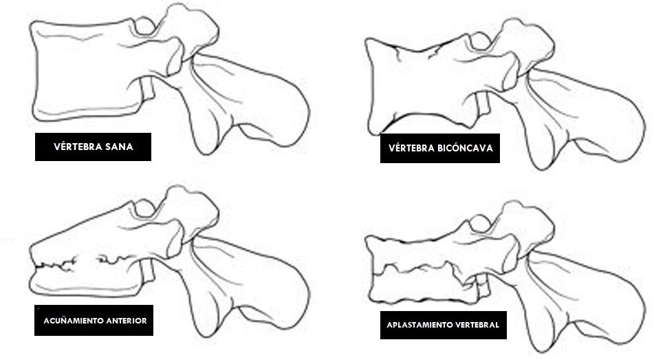 tipos de fracturas vertebrales