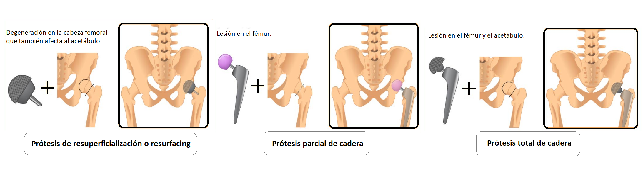 tipos de prótesis de cadera
