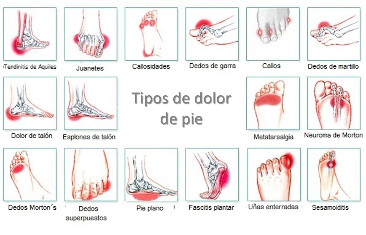 Tipos de dolor de pie