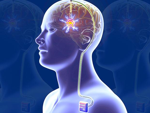 estimulación cerebral profunda